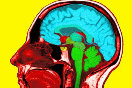Unsicheres Einkommen lässt Hirn schrumpfen