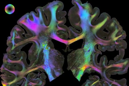 Faszination Gehirn – das Human Brain Project