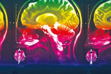 Demenz: Technik gegen das große Vergessen