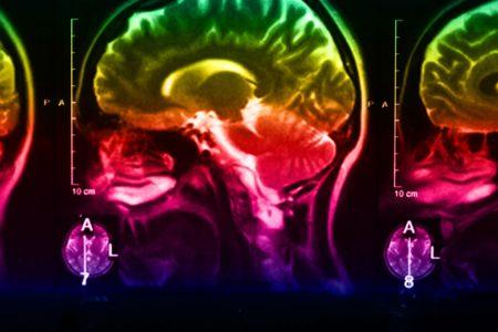 Neue Erkenntnisse zu Protein eröffnen Chancen für die Krebstherapie